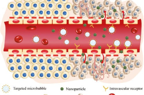 Ligand-coupled Microbubbles (MBs)