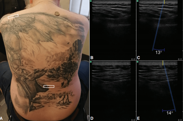 Deep impact of superficial skin inking: acoustic analysis of underlying tissue